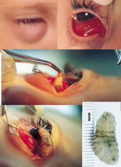 cacing di mata manusia